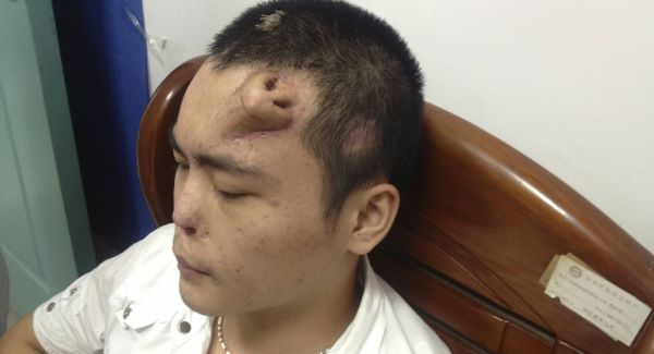 Man has new nose grown on forehead in China