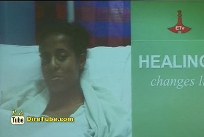 Ethiopian Doctors Performance on Separating conjoined body from 17 years girl
