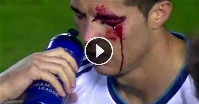 Cristiano Ronaldo Takes An Eye Injury Like A Boss In This Epic Video