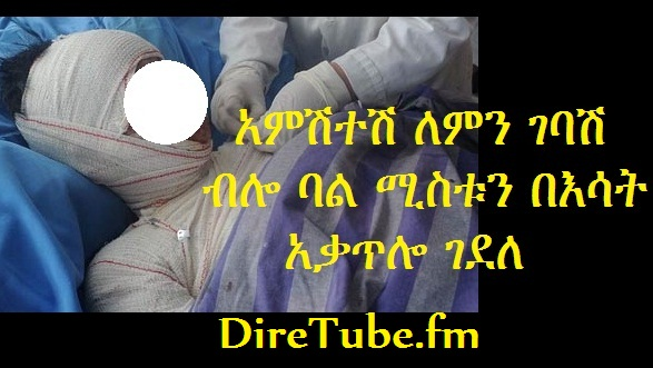 Man Burned Wife to Death in Addis Ababa