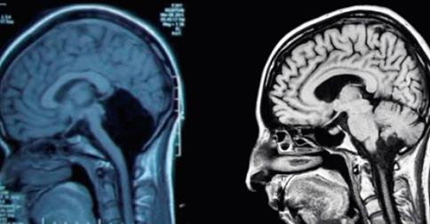 Extremely Rare case of Woman with no Cerebellum Puzzles Doctors