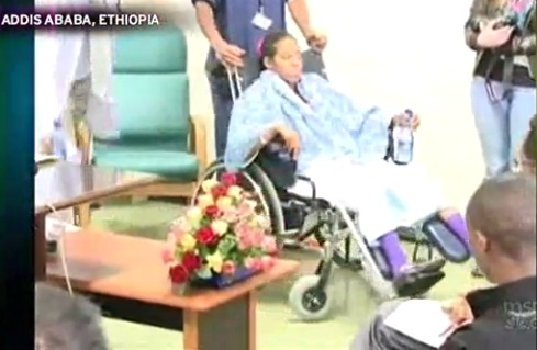 Teen with eight limbs undergoes surgery by Ethiopian Doctors