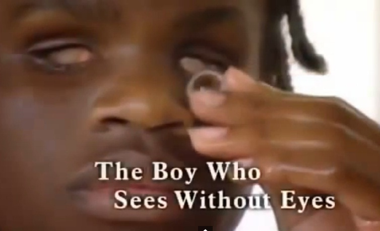 Incredible Boy Without Eyes Can See Everything