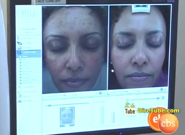 Skin Care with Fana Assefa RN Part 1